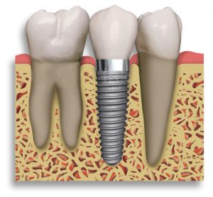 Dental implants look just like normal teeth.